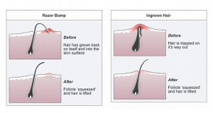 Here's why you get ingrown hairs!