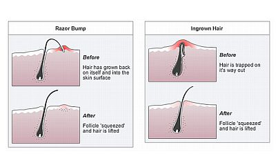 Ingrown hairs are the ...